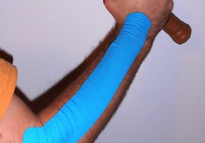"Tape Anlage bei Epicondylitis radialis humeri (""Tennisarm"")"